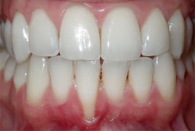 Quanto Custa Uma Cirurgia Na Gengiva Ideal Odonto