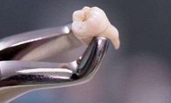 Arrancar dente siso preço