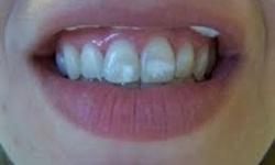 como tirar manchas dos dentes com agua oxigenada