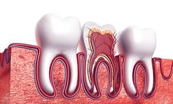 Como tirar o preto do dente