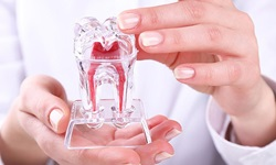 Como tirar pedra dos dentes