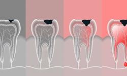 Como tratar canal de dente