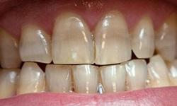 Dentes manchados