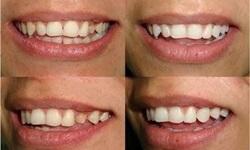 Implante dente da frente