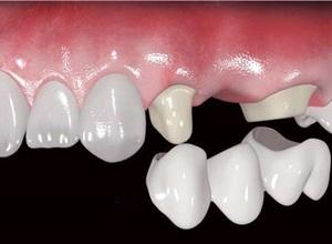 coroa de dente