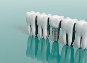 plano odontológico implantes dentários