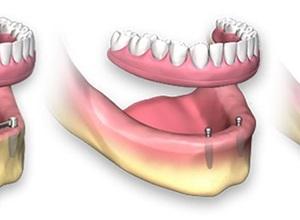Como descobrir o melhor preço de implante?