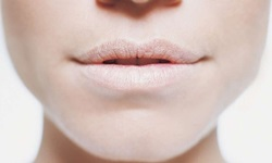 boca seca tratamento