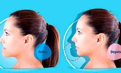 cirurgia ortognática antes e depois