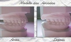 cirurgia ortognática antes e depois fotos