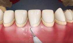 Como tirar tártaro dos dentes em casa