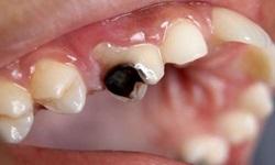 Dente estragado