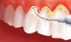 dente tártaro