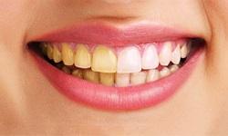 dentes manchados após clareamento