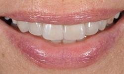 Dentista estética