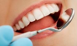 Enxerto dente