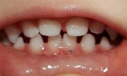 manchas escuras nos dentes causadas por bactérias