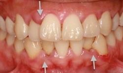 Manchas nos dentes permanentes