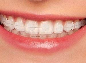 aparelho dentário de porcelana