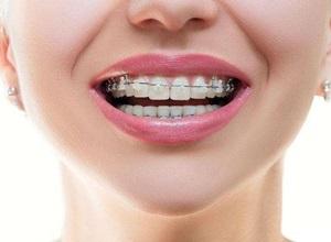 Alinhando seus dentes com aparelho fixo