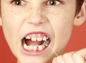 arrancar dente