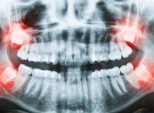 cirurgia dente siso inflamado