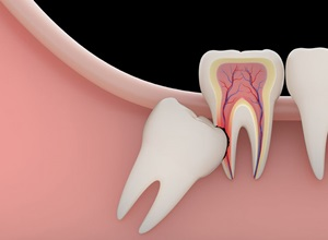 cirurgia do dente do siso