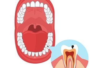clínica endodontia