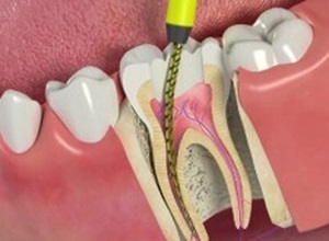 como amenizar dor de dente canal