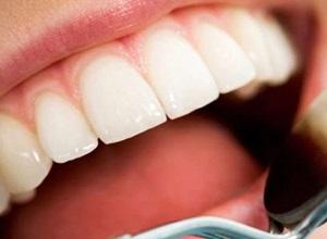 como deixar os dentes mais branco