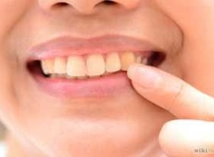 Saiba como tirar o amarelo dos dentes
