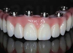 dentadura fixa