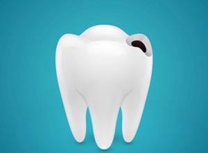 dente com cárie inicial