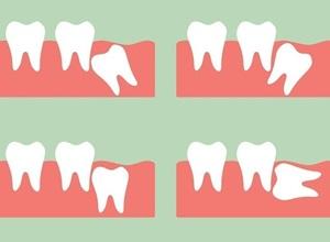 dente do siso