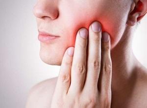 dente do siso inflamado depois da extração