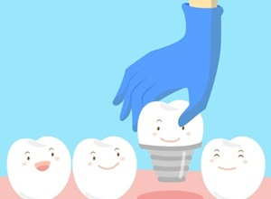 dente implante