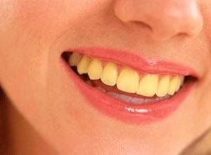 dentes amarelados causas