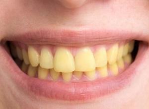 dentes amarelados depois do aparelho