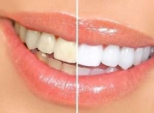 dentes amarelos