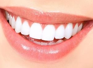 dentes brancos em casa