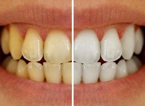 Dentes mais brancos