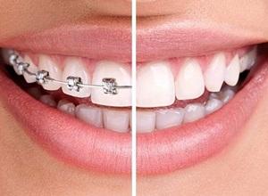 dentista ortodontia