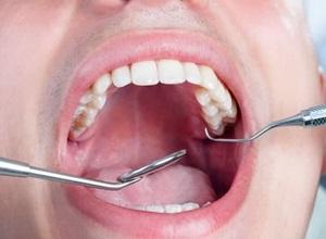 dentista tratamento de canal