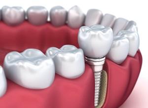 implante dentário como e feito