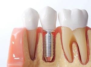 implante dentário custo