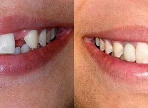 implante dentário dói
