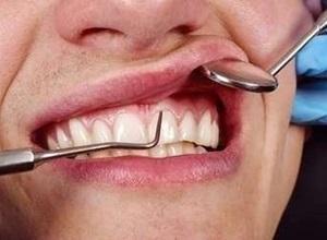 inflamação no dente