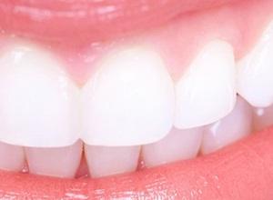 mancha preta no dente da frente