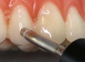 periodontite avançada