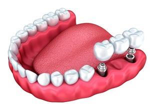 prótese sobre implante passo a passo